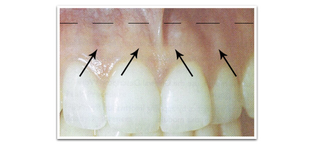 healthy gingival